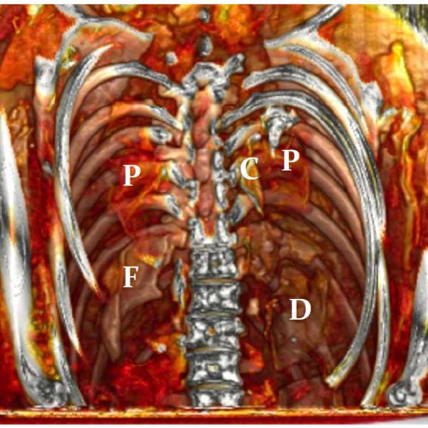 P: pulmons, C: cor, F: fetge i D: diafragma Tomografia computada del tòrax on s'observen els teixits tous conservats (Autors: Grup de Recerca en Osteobiografia, Universitat Autònoma de Barcelona)