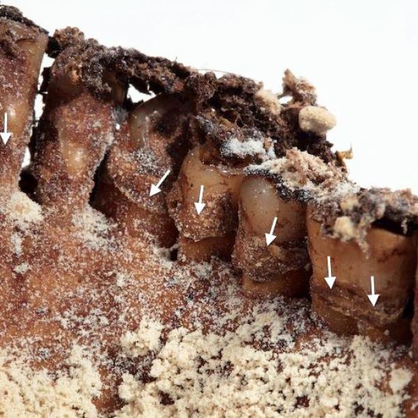 Detall de les peces anteriors dretes de la mandíbula amb dipòsits de càlcul dental (fletxes) (Autors: Carles Aymerich i Ramon Maroto Centre de Restauració de Béns Mobles de Catalunya)