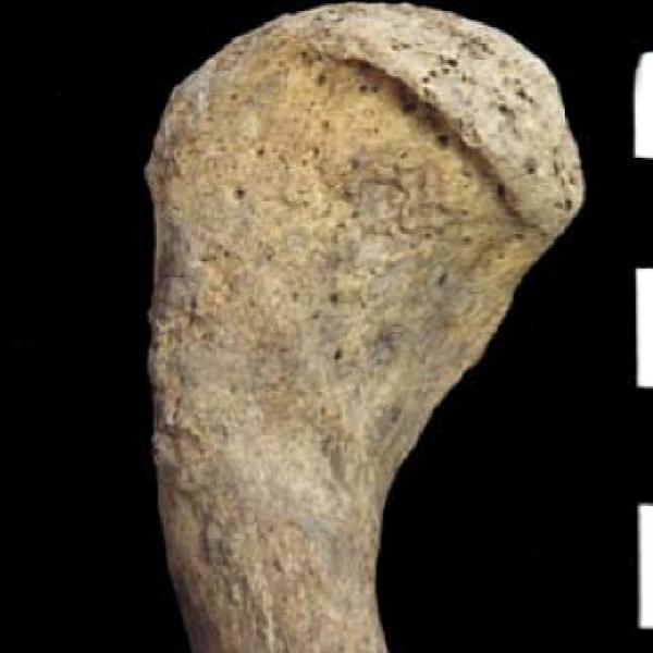 Clavícula dreta assignada a l'Individu 1. S'obseva l'artrosi localitzada en l'epífisi acromial (Autor: Grup de Recerca en Osteobiografia. Universitat Autònoma de Barcelona)