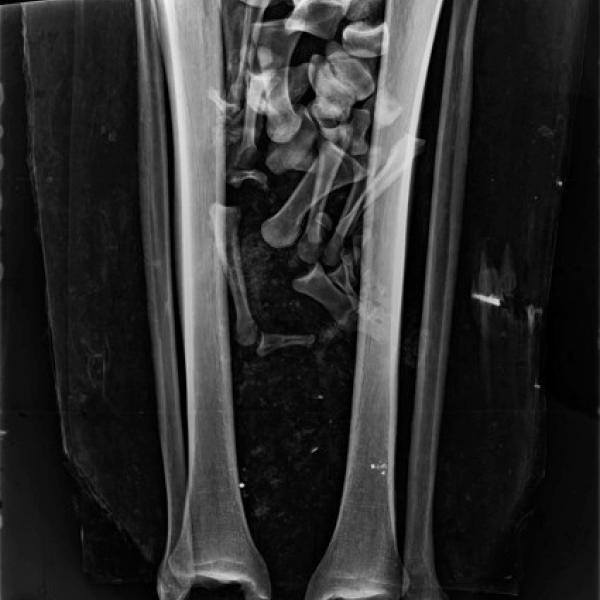 Radiografia de les cames (Autors: Pius Hospital de Valls)