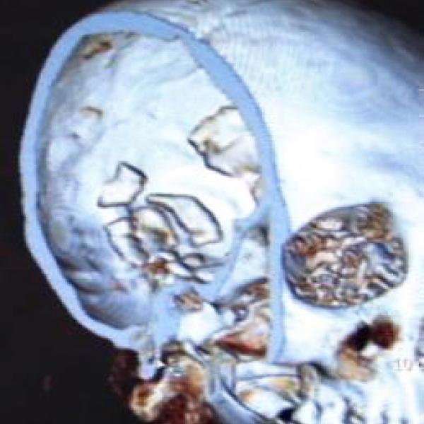 Tomografia del crani on s'observa el menangioma identificat al parietal dret (Autors: Grup de Recerca de Ostebiografia. Universitat Autònoma de Barcelona)