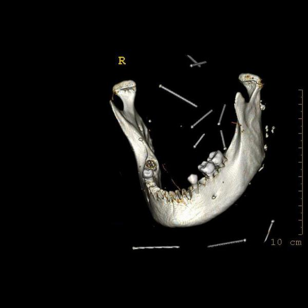 Reconstrucció volumètrica de la mandíbula en la qual es pot observar el seu estat de conservació i les peces dentals. (Autor: Grup de Recerca Ostebiogràfica. Universitat Autònoma de Barcelona)