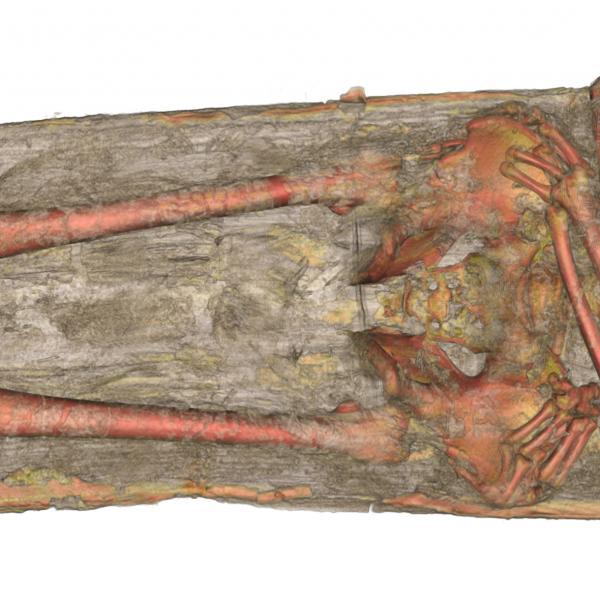 El cos de Pere el Gran a l'interior de la tomba evidenciava una perfecta posició anatòmica, sense alteracions ni moviments evidents (Autors: Hospital Joan XXIII de Tarragona; tractament de la imatge: Joan E. Garcia Biosca)