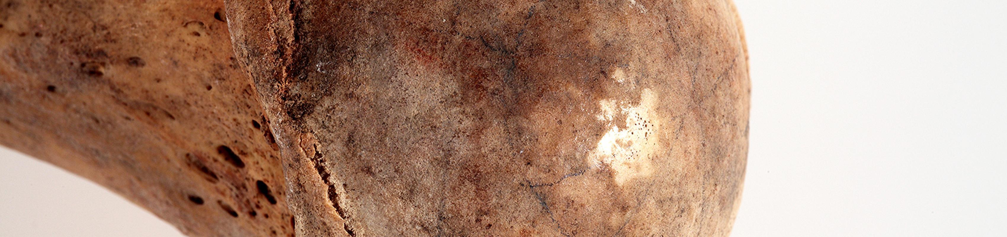 Cap de l'húmer dret de l'Individu 2. Al centre de l'epífisi s'observa una zona brillant, ebúmia, és a dir un augment patològic de la densitat de l'os que el converteix en una massa dura semblant a l'ivori (Autor: Carles Aymerich i Ramon Maroto. Centre de Restauració de Béns Mobles de Catalunya)