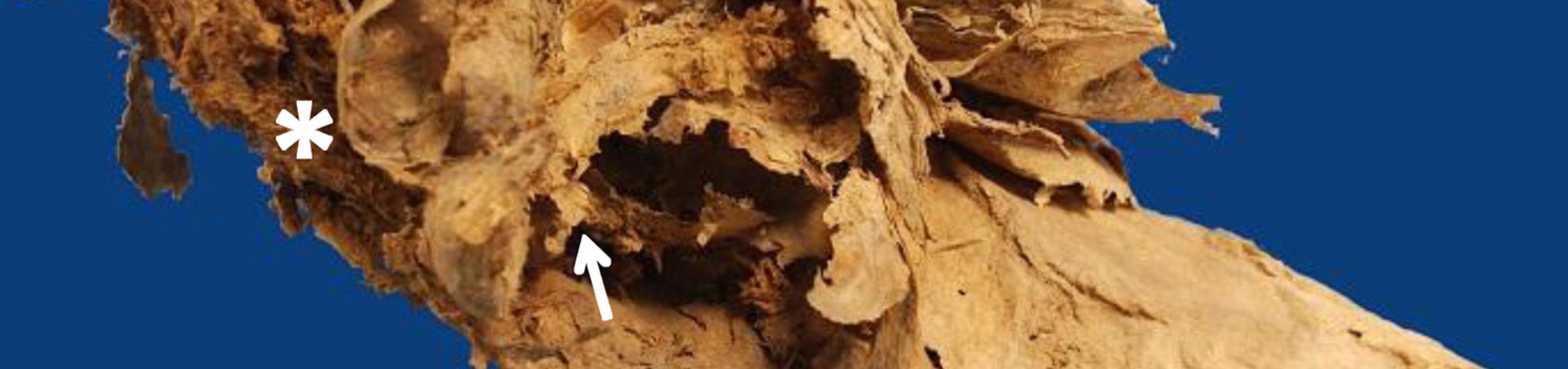 Imatge interna de les vísceres abdominals a través de la fragmentació de pelvis. S'identifica el colon (fletxa) i el budell prim (*) (Autors: Grup de Recerca en Osteobiografia. Universitat Autònoma de Barcelona)